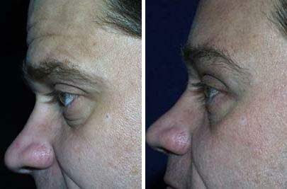 Brow Lift Before and After Photos in Lexington, KY, Patient 6512