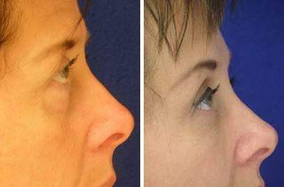 Brow Lift Before and After Photos in Lexington, KY, Patient 6532