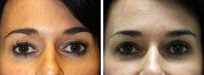 Eyelid Lift Before and After Photos in Lexington, KY