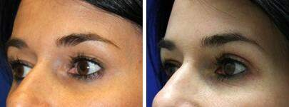 Eyelid Lift Before and After Photos in Lexington, KY, Patient 6579