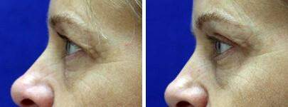 Eyelid Lift Before and After Photos in Lexington, KY, Patient 6589
