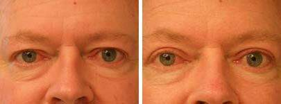 Eyelid Lift Before and After Photos in Lexington, KY, Patient 6549