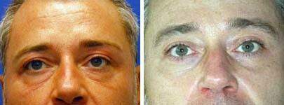 Eyelid Lift Before and After Photos in Lexington, KY, Patient 6559