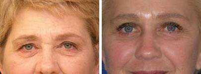 Eyelid Lift Before and After Photos in Lexington, KY, Patient 6569