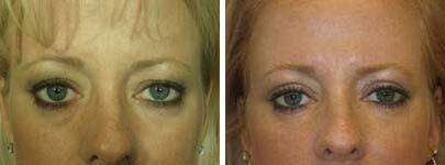 Eyelid Lift Before and After Photos in Lexington, KY, Patient 6542