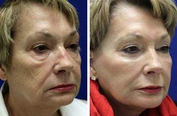 Facelift Before and After Photos in Lexington, KY, Patient 6437