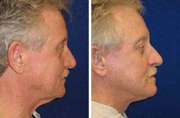 Facelift Before and After Photos in Lexington, KY, Patient 6467