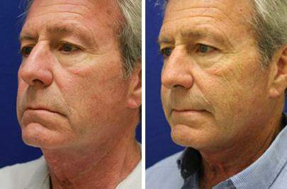 Facelift Before and After Photos in Lexington, KY, Patient 6414