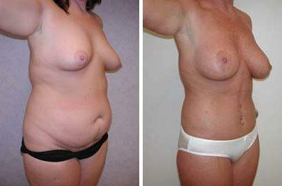Body Lift Before and After Photos in Lexington, KY, Patient 7300