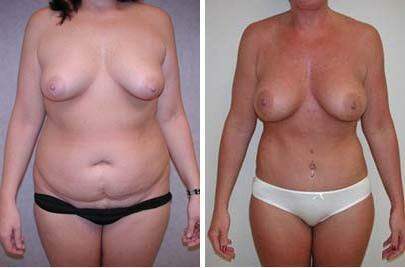 Before and After Photos in , , Body Lift