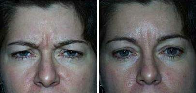 Botox Before and After Photos in Lexington, KY