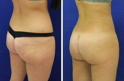 Brazilian Butt Lift Before and After Photos in Lexington, KY, Patient 7330
