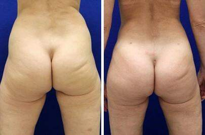 Before and After Photos in , , Brazilian Butt Lift