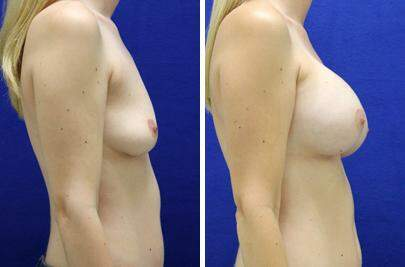 Breast Augmentation Before and After Photos in Lexington, KY, Patient 8243