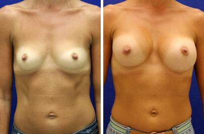 Breast Augmentation Before and After Photos in Lexington, KY, Patient 8253