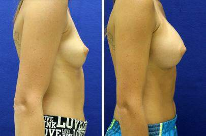 Breast Augmentation Before and After Photos in Lexington, KY, Patient 8263