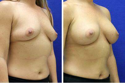 Breast Augmentation Before and After Photos in Lexington, KY, Patient 8293