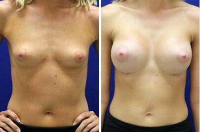Breast Augmentation Before and After Photos in Lexington, KY