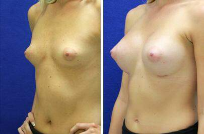 Breast Augmentation Before and After Photos in Lexington, KY, Patient 8303