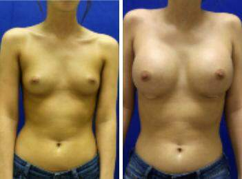 Breast Augmentation Before and After Photos in Lexington, KY, Patient 8313
