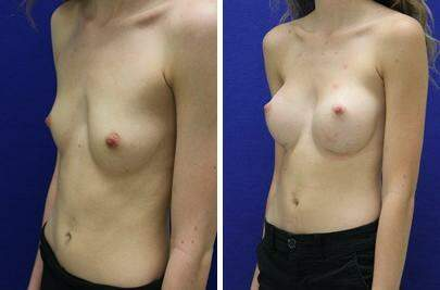 Breast Augmentation Before and After Photos in Lexington, KY, Patient 7946