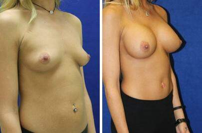 Breast Augmentation Before and After Photos in Lexington, KY, Patient 8007