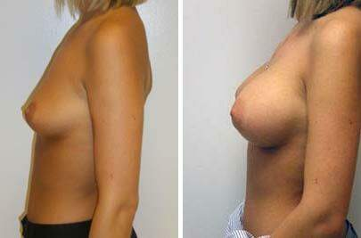 Breast Augmentation Before and After Photos in Lexington, KY, Patient 8017