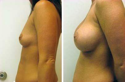 Breast Augmentation Before and After Photos in Lexington, KY, Patient 8027