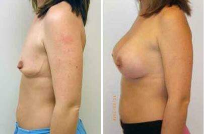 Breast Augmentation Before and After Photos in Lexington, KY, Patient 8037
