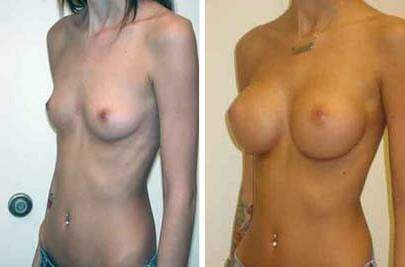 Breast Augmentation Before and After Photos in Lexington, KY, Patient 8047