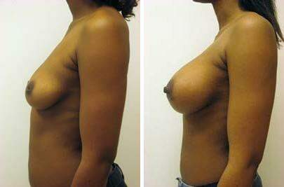 Breast Augmentation Before and After Photos in Lexington, KY, Patient 8077