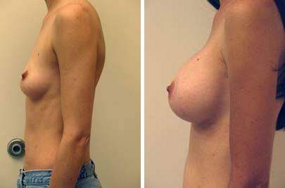 Breast Augmentation Before and After Photos in Lexington, KY, Patient 8087