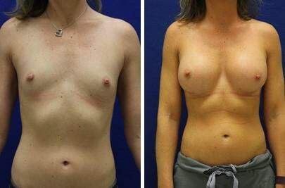 Breast Augmentation Before and After Photos in Lexington, KY, Patient 7916