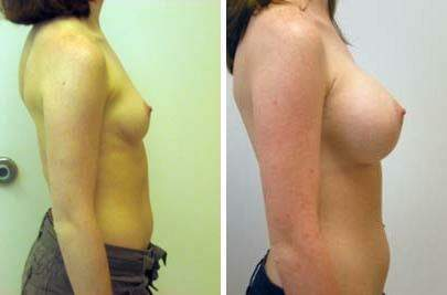 Breast Augmentation Before and After Photos in Lexington, KY, Patient 8097