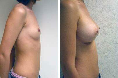Breast Augmentation Before and After Photos in Lexington, KY, Patient 8127