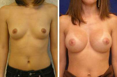 Breast Augmentation Before and After Photos in Lexington, KY, Patient 8137