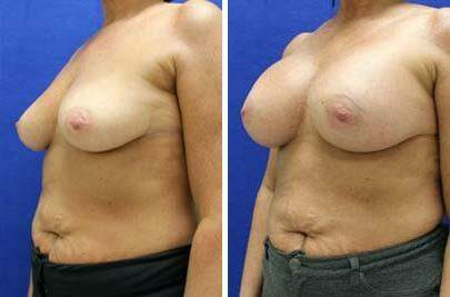 Breast Augmentation Before and After Photos in Lexington, KY, Patient 8147