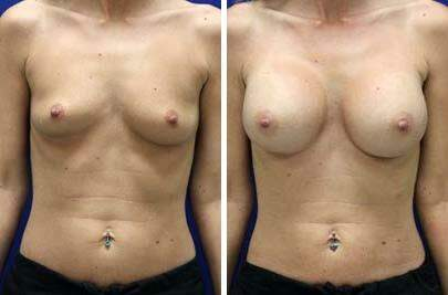 Breast Augmentation Before and After Photos in Lexington, KY, Patient 8157