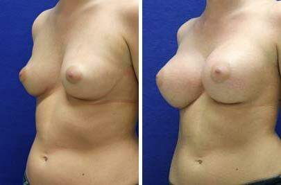 Breast Augmentation Before and After Photos in Lexington, KY, Patient 8167