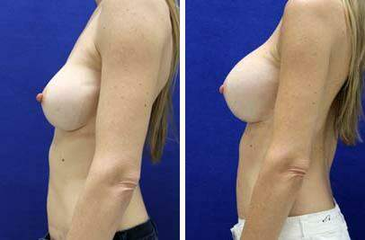 Breast Augmentation Before and After Photos in Lexington, KY, Patient 8223