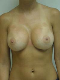 Breast Augmentation in Lexington, after photo - Patient 8323