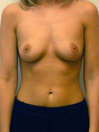 Breast Augmentation in Lexington, before photo - Patient 8323