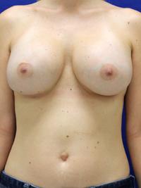 Breast Augmentation in Lexington, after photo - Patient 8243