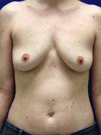 Breast Augmentation in Lexington, before photo - Patient 8243