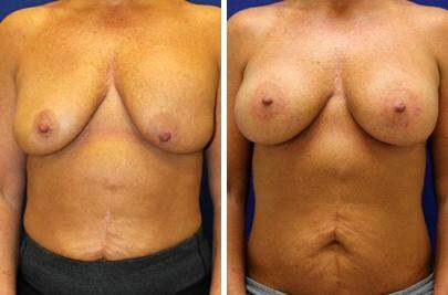 Before and After Photos in , , Breast Lift