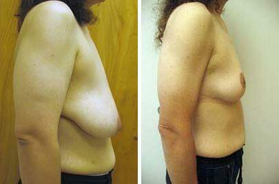Breast Lift Before and After Photos in Lexington, KY, Patient 7846