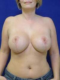 Breast Lift with Implants in Lexington, after photo - Patient 7814
