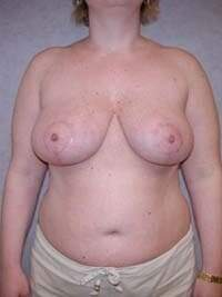 Breast Lift in Lexington, after photo - Patient 7856