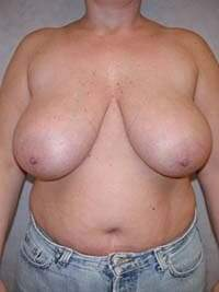Breast Lift in Lexington, before photo - Patient 7856