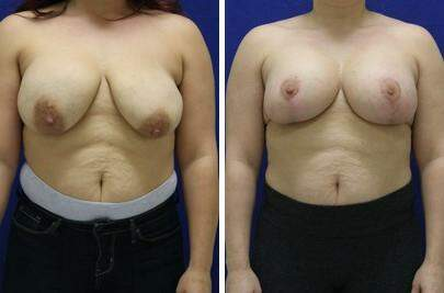 Breast Lift with Implants Before and After Photos in Lexington, KY, Patient 7804